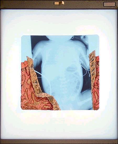 Рентгеновские снимки по-новому. Изображение № 14.