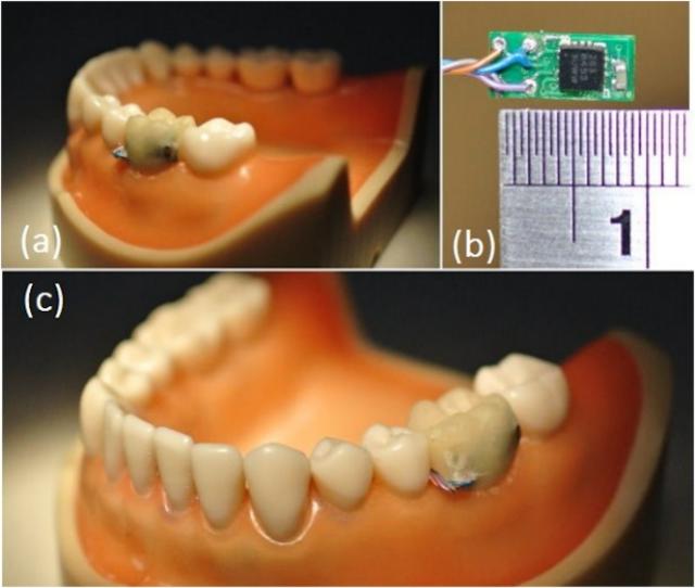 Учёные разработали «умный» зуб, следящий за привычками пациента. Изображение № 1.