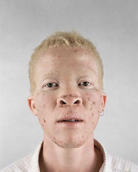 Убийство африканских альбиносов. Изображение № 24.