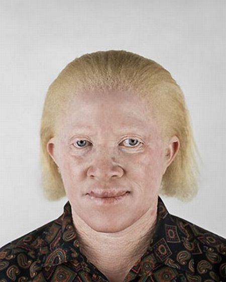 Убийство африканских альбиносов. Изображение № 21.
