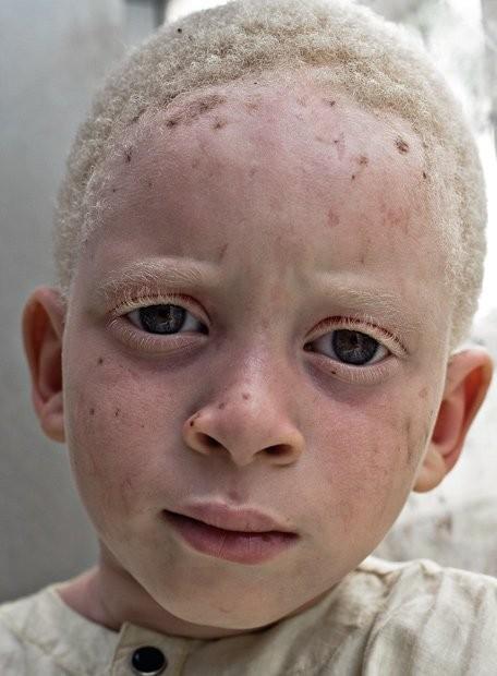 Убийство африканских альбиносов. Изображение № 17.