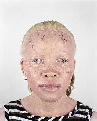 Альбинизм Питера Хьюго. Изображение № 12.