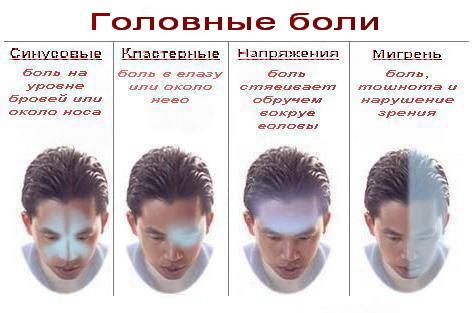 Путеводитель поголовной боли. Изображение № 1.