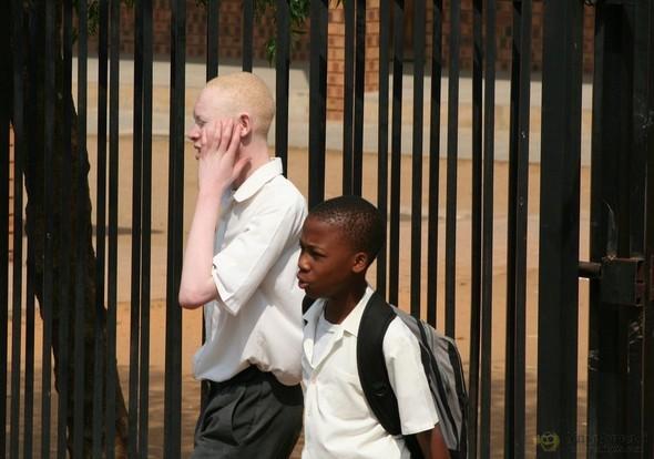 Убийство африканских альбиносов. Изображение № 14.