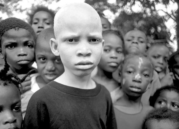 Убийство африканских альбиносов. Изображение № 9.
