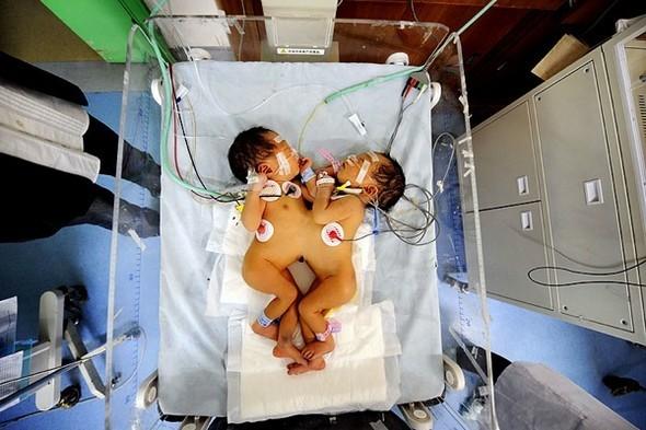 Однояйцевые близнецы. Изображение № 1.
