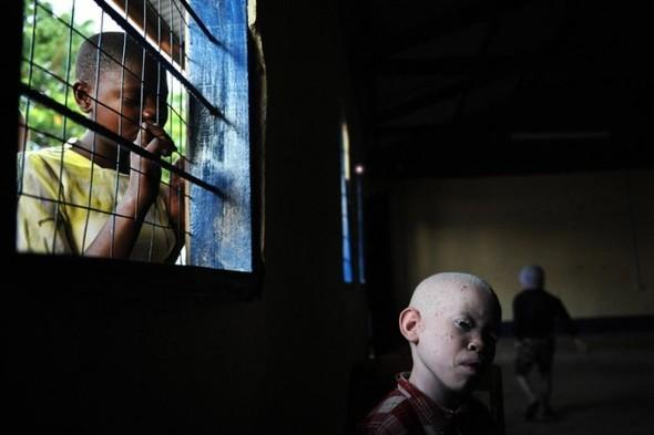 Убийство африканских альбиносов. Изображение № 6.