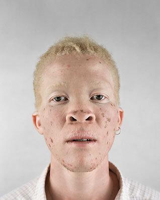 Альбинизм Питера Хьюго. Изображение № 6.