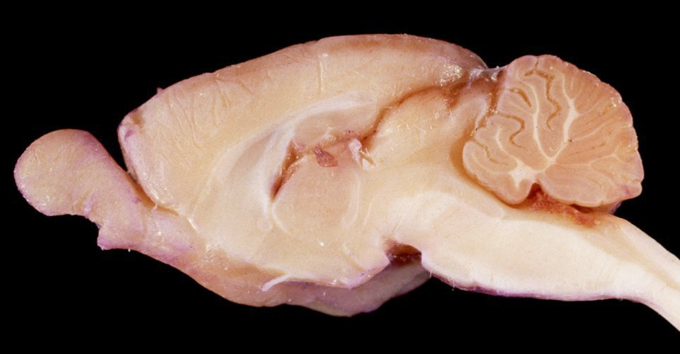 Как учёные пытаются сделать мозг человека бессмертным. Изображение № 3.