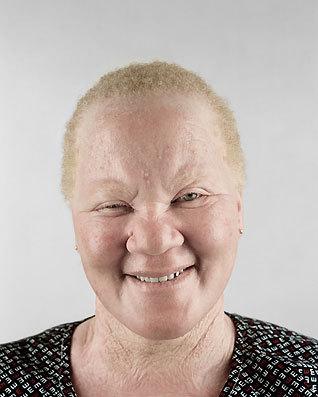 Альбинизм Питера Хьюго. Изображение № 9.