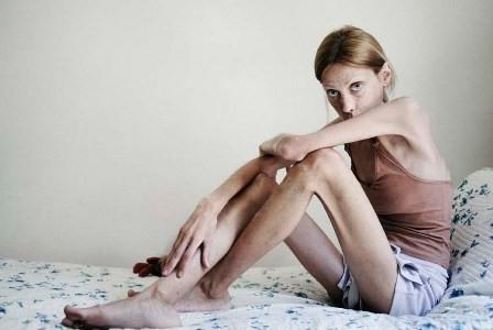 Анорексия - тренд или болезнь?. Изображение № 4.