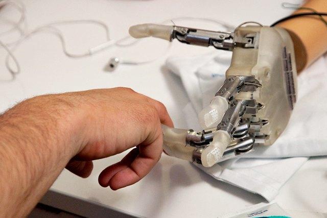 Бионическим протезом управляют с помощью iOS-приложения. Изображение № 1.