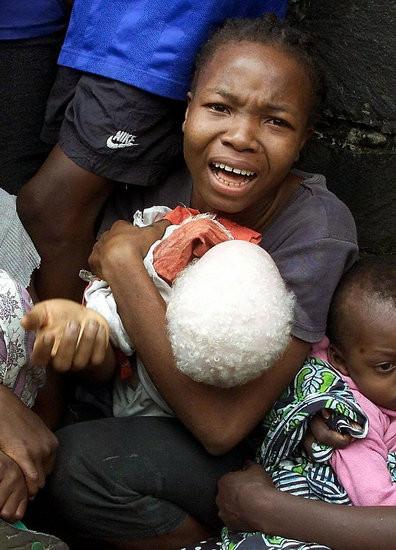 Убийство африканских альбиносов. Изображение № 3.