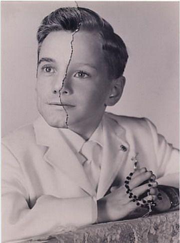 Фотохирургия длиною вжизнь. Изображение № 6.