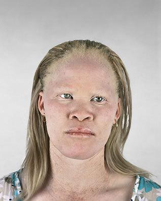 Альбинизм Питера Хьюго. Изображение № 7.