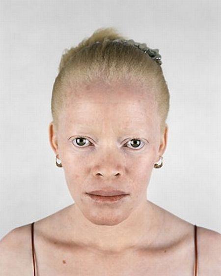 Убийство африканских альбиносов. Изображение № 26.