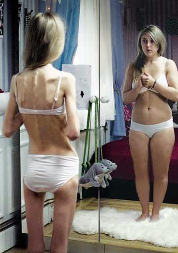 Анорексия - тренд или болезнь?. Изображение № 3.