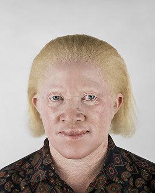 Альбинизм Питера Хьюго. Изображение № 3.