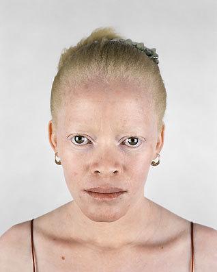 Альбинизм Питера Хьюго. Изображение № 4.