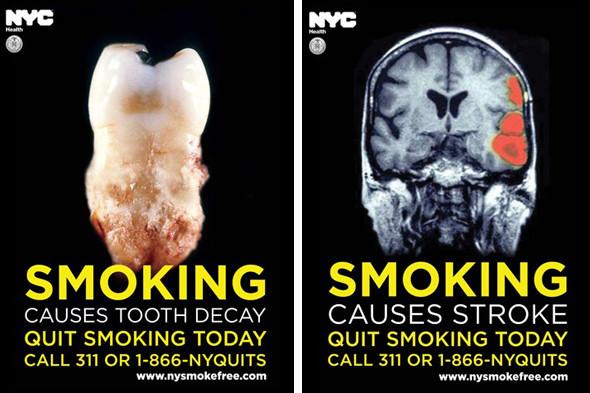 Рекламные плакаты антитабачной кампании в Нью-Йорке. Изображение № 2.