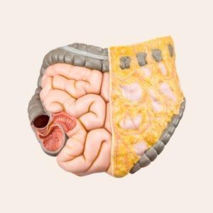 Синдром раздражённого кишечника: Что это такое и как его победить — Здоровье на Wonderzine