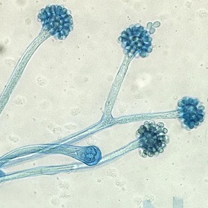 На кого подписаться: Инстаграм о грибах под микроскопом — Здоровье на Wonderzine
