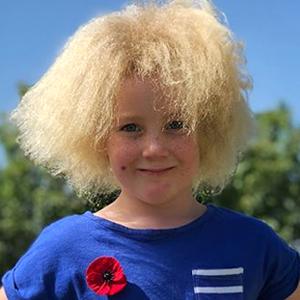 На кого подписаться: Девочка с нерасчёсываемыми волосами — Здоровье на Wonderzine