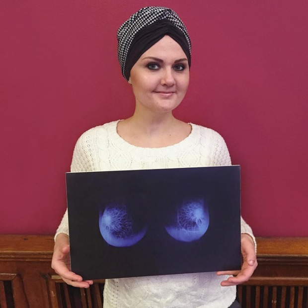 Как я борюсь  с раком груди — Личный опыт на Wonderzine