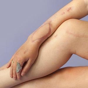 На кого подписаться: Фотопроект о шрамах Behind the scars — Красота на Wonderzine