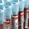 Роспотребнадзор назвал ситуацию с ВИЧ в России эпидемией