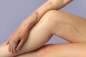 На кого подписаться: Фотопроект о шрамах Behind the scars