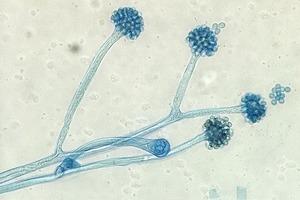 На кого подписаться: Инстаграм о грибах под микроскопом