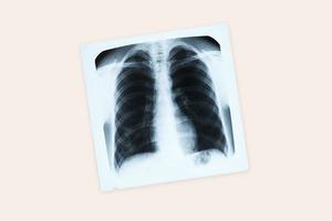 Новый анализ позволяет диагностировать туберкулёз за час