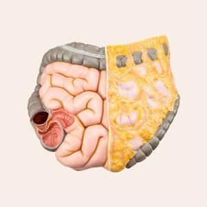 Синдром раздражённого кишечника: Что это такое и как его победить
