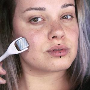 Микронидлинг: Модная и полезная процедура для обновления кожи