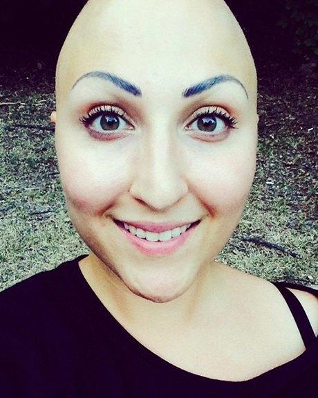 Жизнь с алопецией:  Я потеряла волосы,  но обрела веру в себя. Изображение № 7.