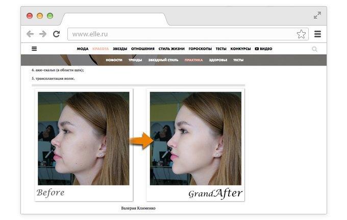 Корейский хирург смоделировал «идеальные» лица редакторов Elle. Изображение № 2.