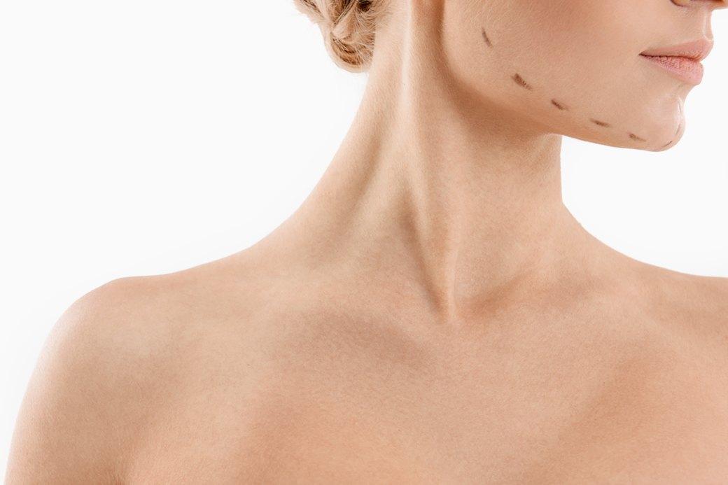 Женщины о том, как привыкнуть к себе после пластической операции. Изображение № 1.