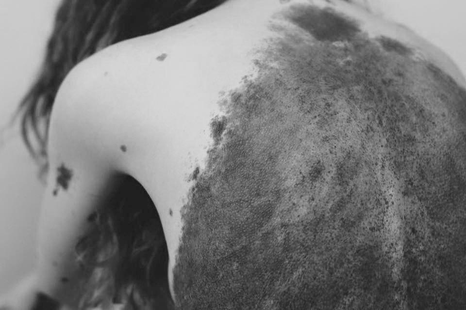 Как научиться жить «другой»: Моё тело покрыто родимыми пятнами. Изображение № 2.