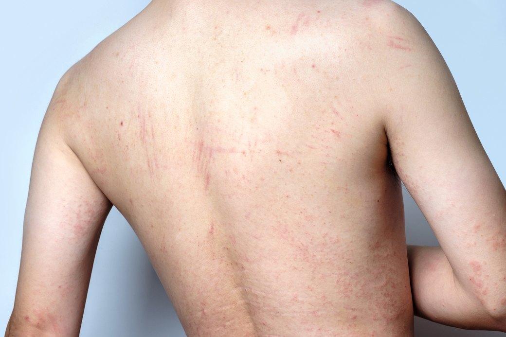 Психодерматология: Как стресс влияет на кожу. Изображение № 1.