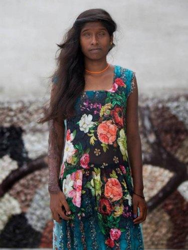 Женщин, которых облили кислотой, объединила мода. Изображение № 7.