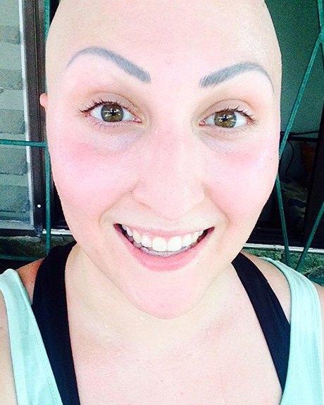 Жизнь с алопецией:  Я потеряла волосы,  но обрела веру в себя. Изображение № 1.