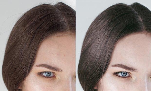 Казалось бы, и так ровная линия роста волос все равно исправляется. Изображение № 1.