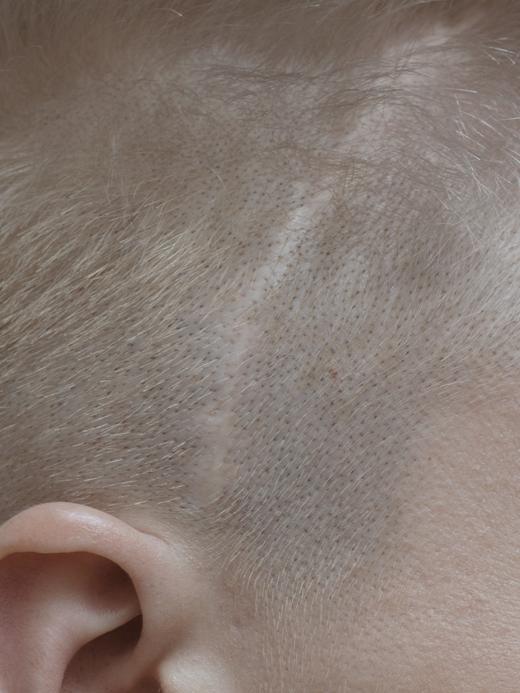 Жизнь со шрамом: Семь историй, оставшихся на теле. Изображение № 8.