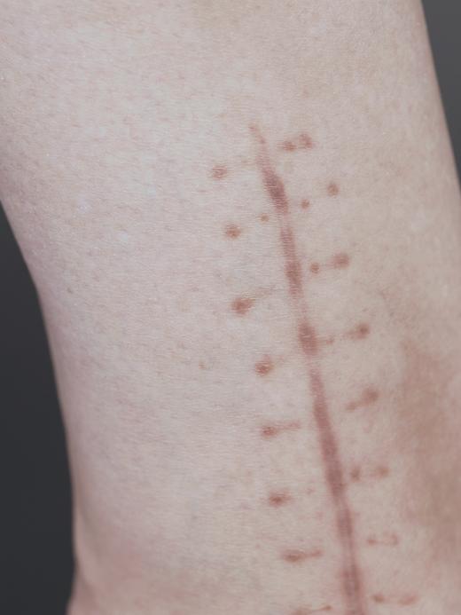 Жизнь со шрамом: Семь историй, оставшихся на теле. Изображение № 20.
