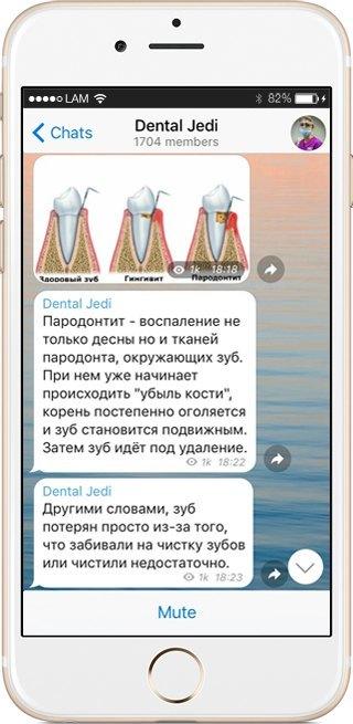 На кого подписаться: Telegram-канал стоматолога Dental Jedi. Изображение № 5.