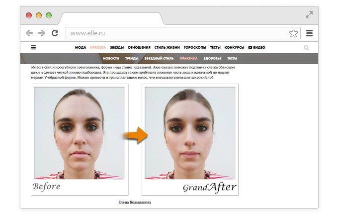 Корейский хирург смоделировал «идеальные» лица редакторов Elle. Изображение № 3.