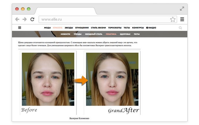 Корейский хирург смоделировал «идеальные» лица редакторов Elle. Изображение № 1.