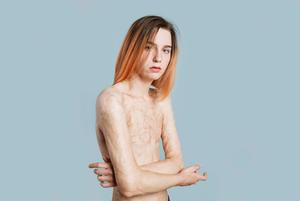 Света Уголек — модель с ожогами 45 % тела