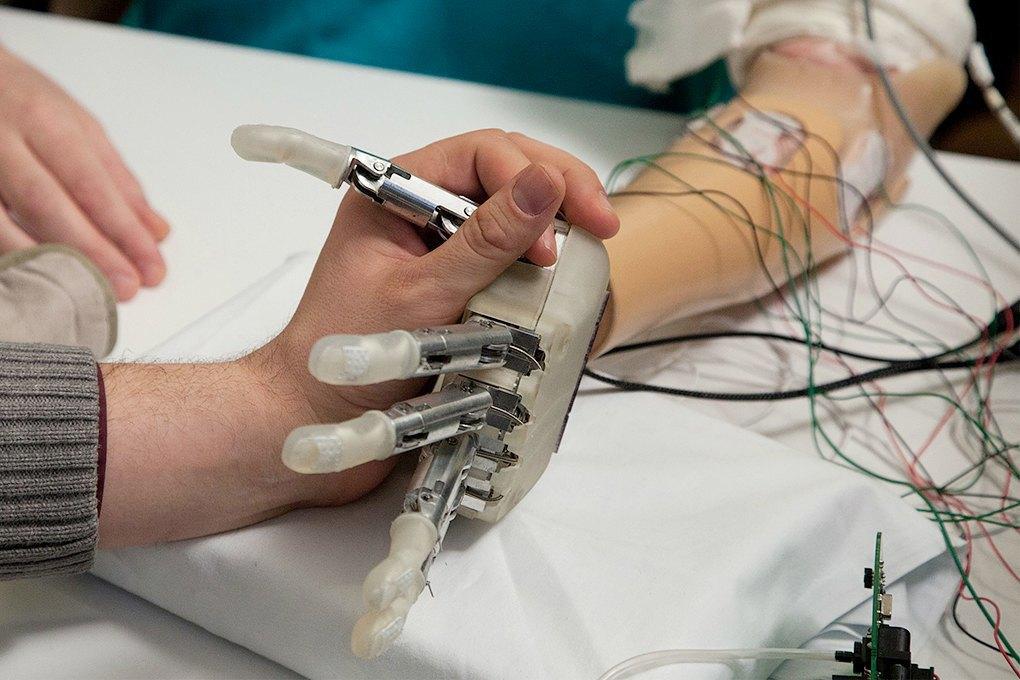 «Люк», я твой отец: Медицинские технологии, которые превратят людей вкиборгов. Изображение № 2.